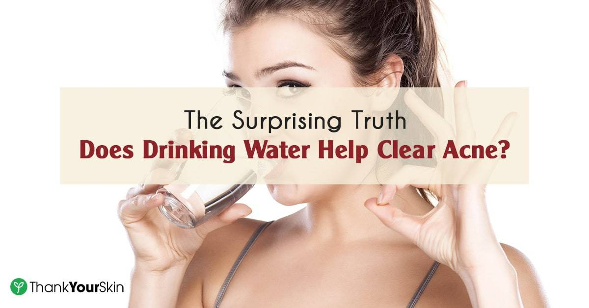 The Surprising Truth: Does Drinking Water Help Clear Acne?