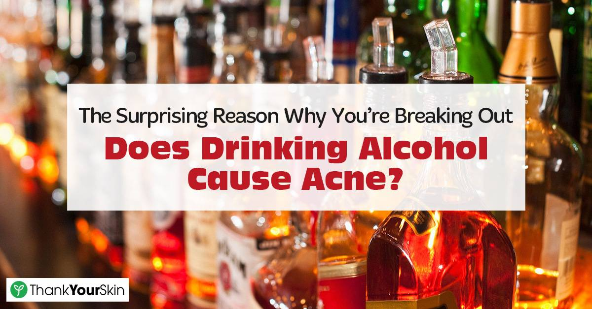 The Surprising Reason Why You're Breaking Out: Does Drinking Alcohol Cause Acne?