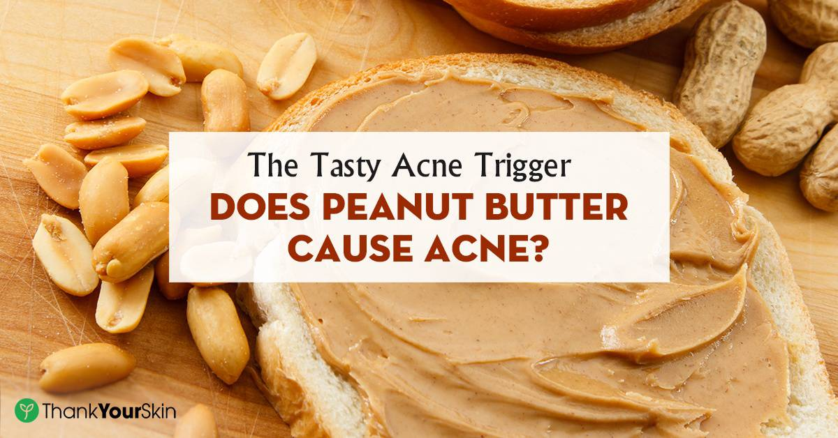 Can peanut butter cause facial breakouts