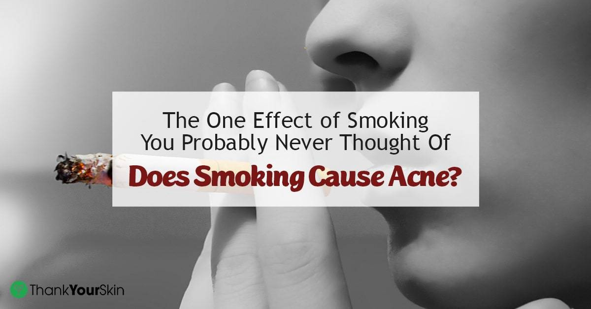 Can smoking give you acne