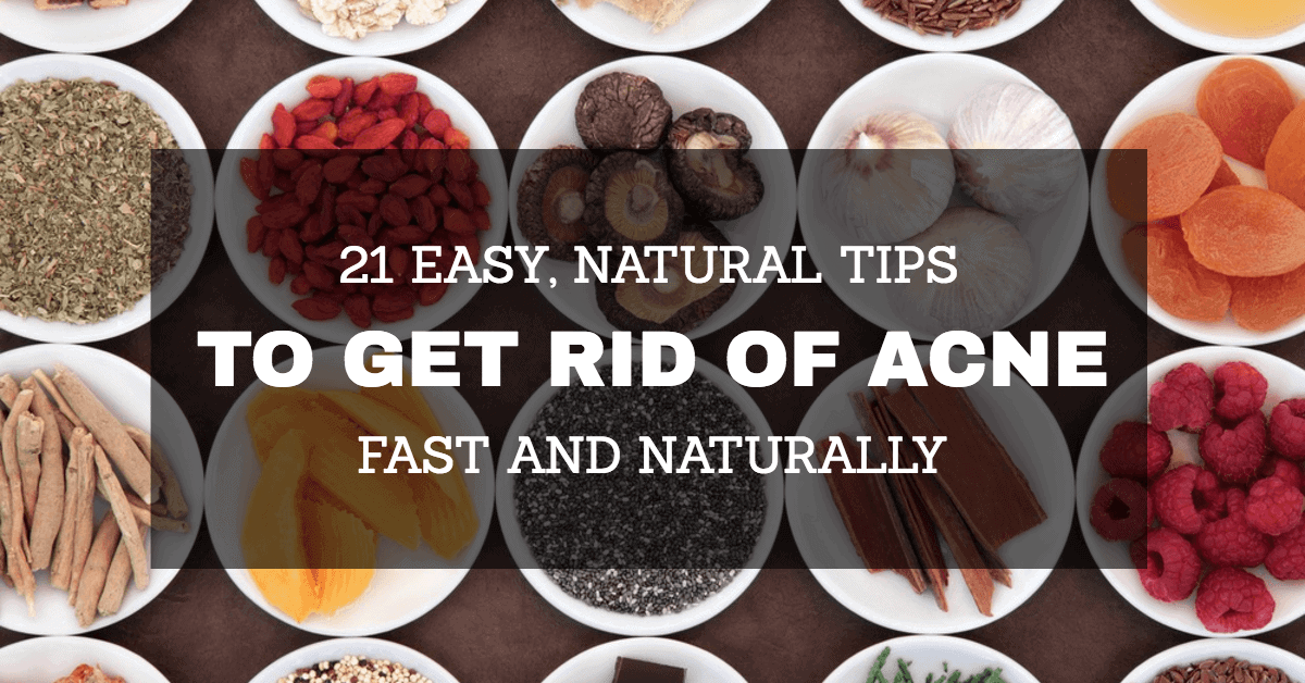 Good Ways To Get Rid Of Acne Naturally