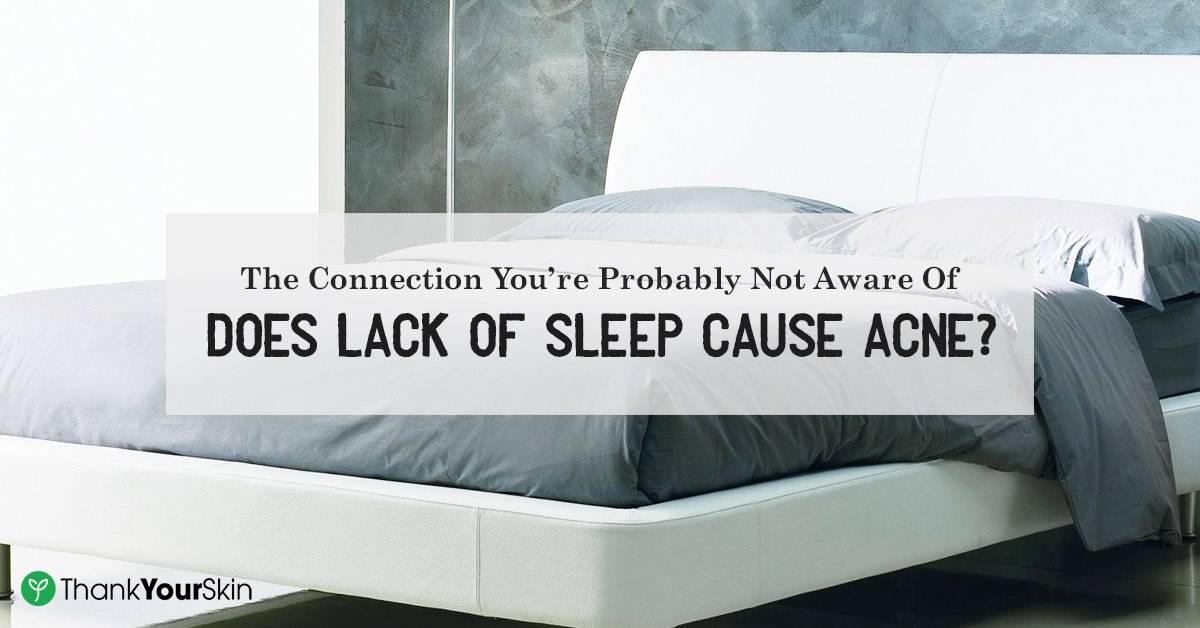 The Connection You're Probably Not Aware Of: Does Lack Of Sleep Cause Acne?