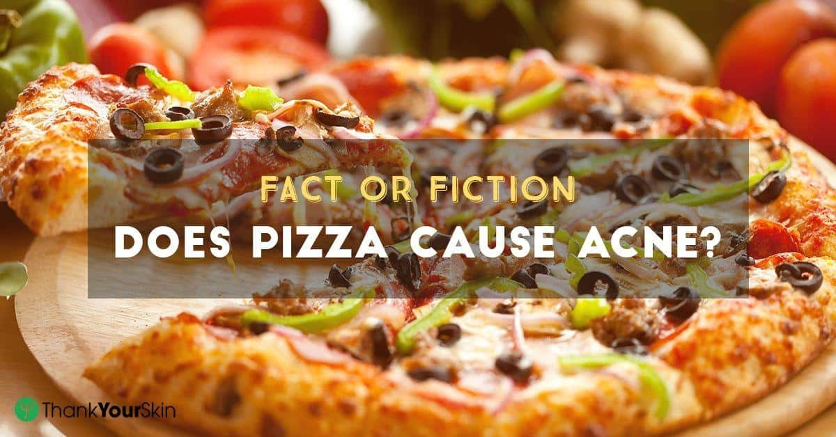 Fact Or Fiction: Does Pizza Cause Acne?