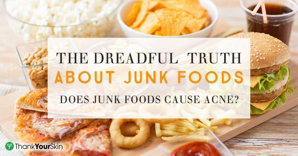 Does Eating Junk Food Cause Acne