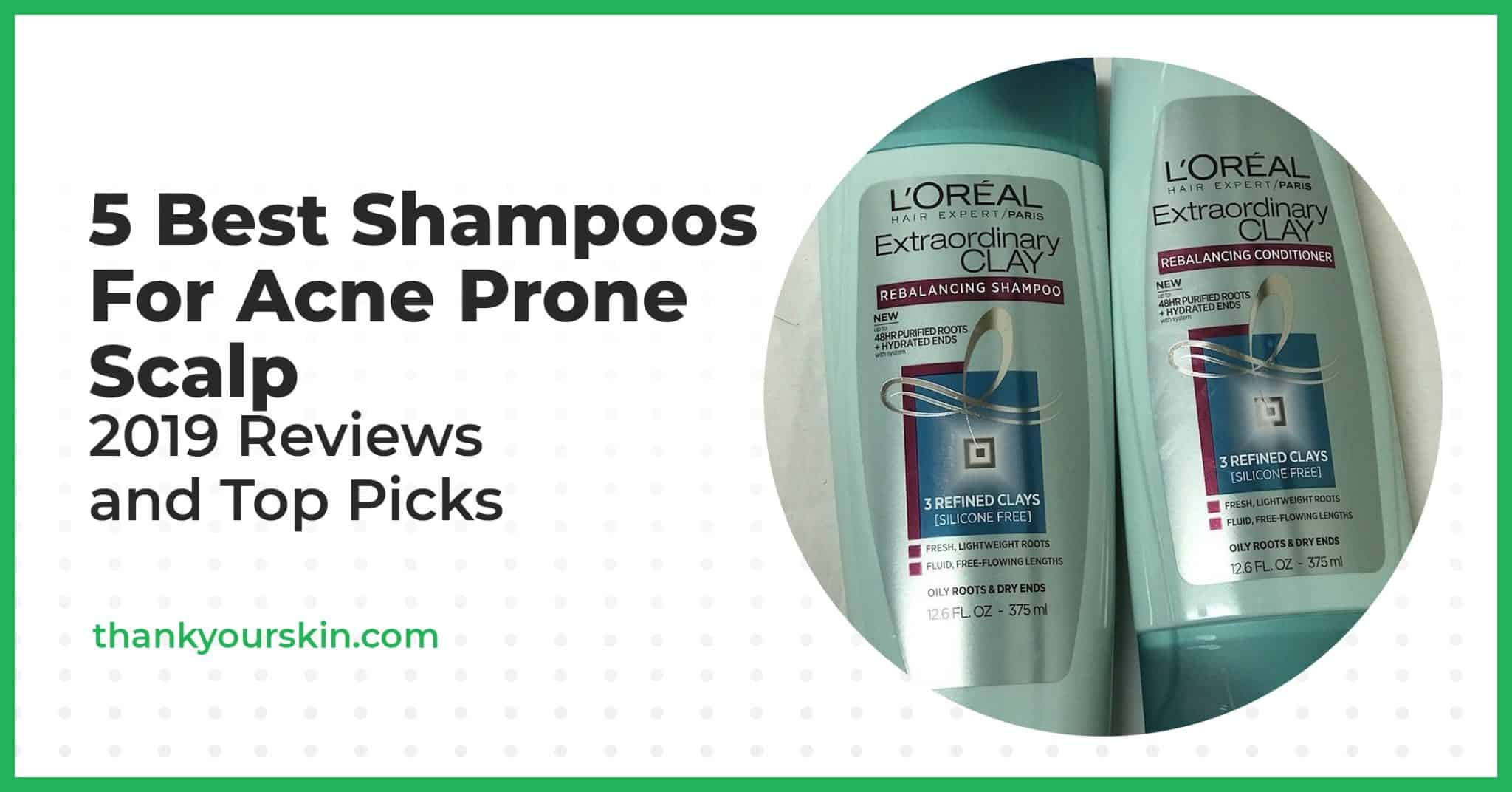 5 Best Shampoos For Acne Prone Scalp That Actually Get The Job Done