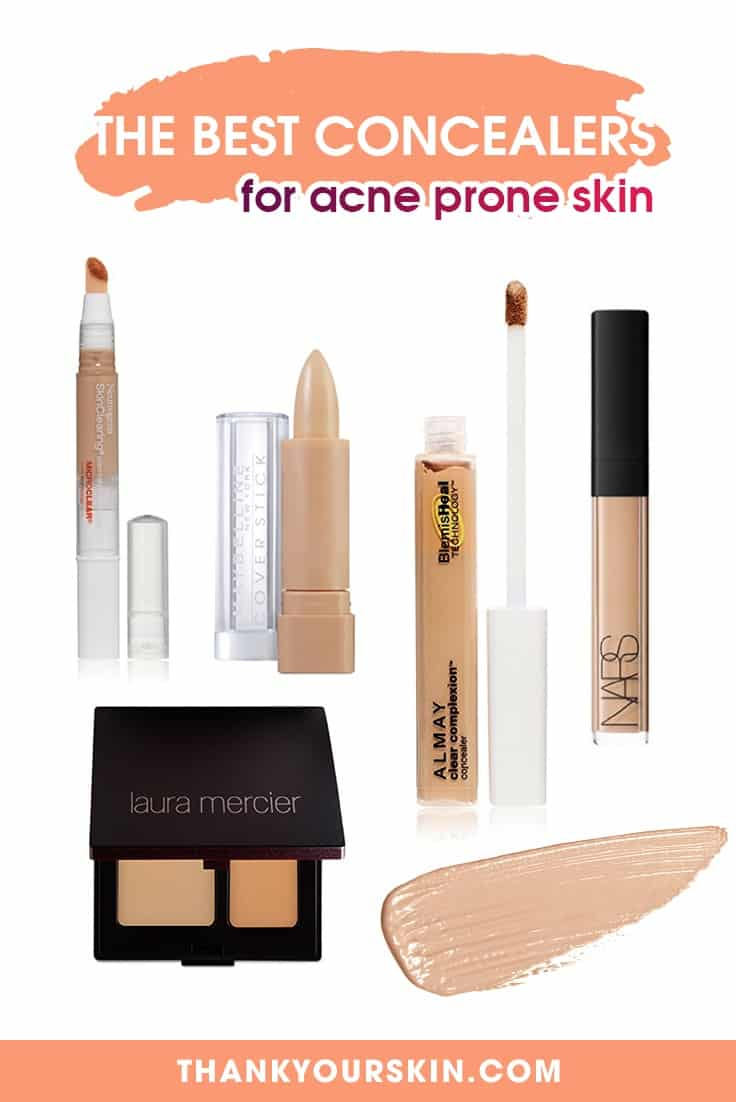 best concealer for acne prone skin