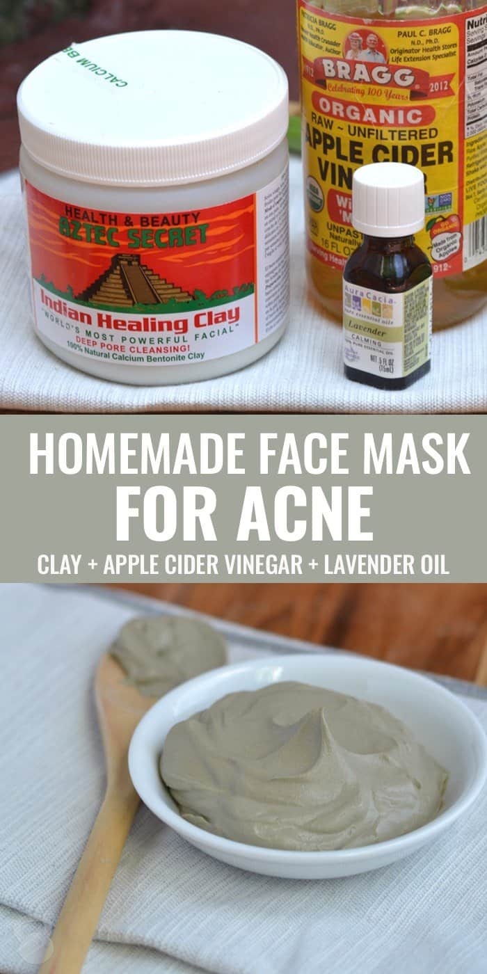Don't have enough free time? This is a simple DIY clay face mask for acne that can totally change your life. If you have bentonite clay and apple cider vinegar, you can surely create this one in no time.