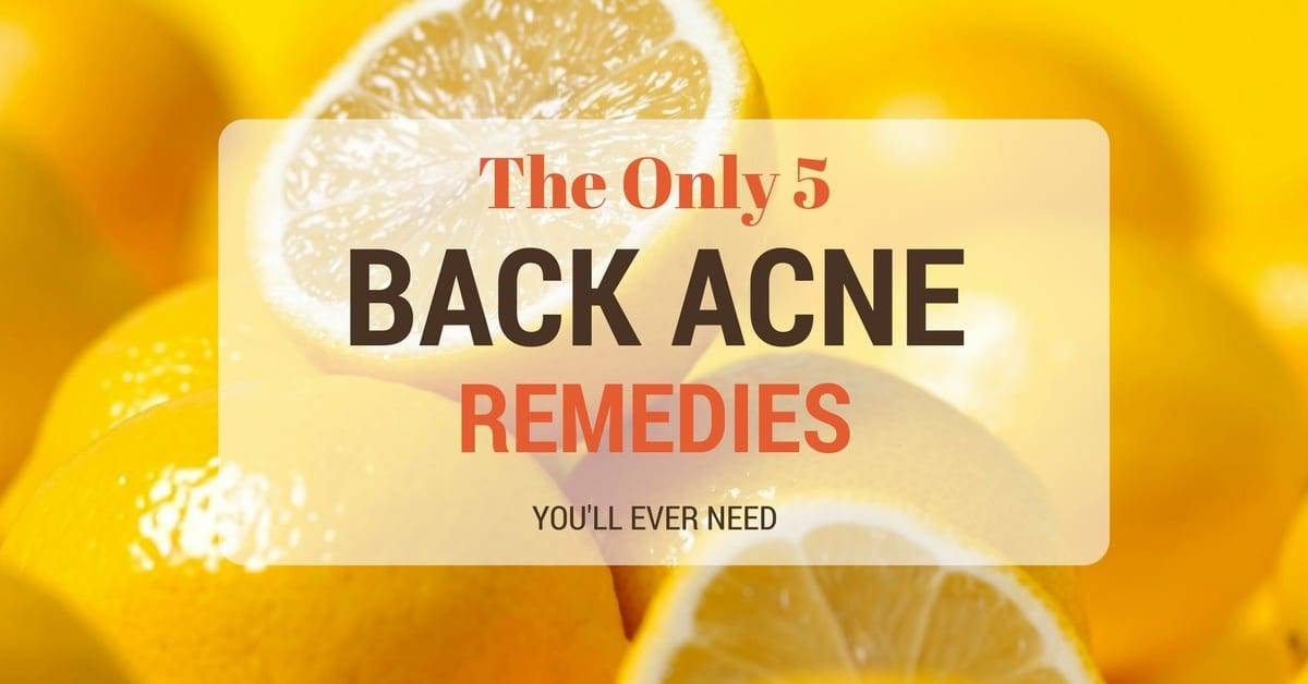 The Only 5 Back Acne Remedies You'll Ever Need