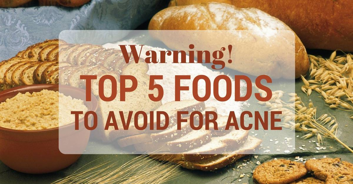 Warning! Top 5 Acne-Causing Food You Need To Avoid