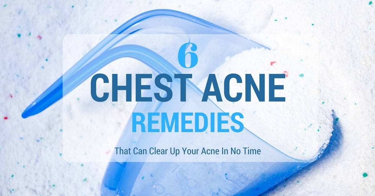 6 Super Effective Remedies That Can Clear Up Your Chest Acne In No Time