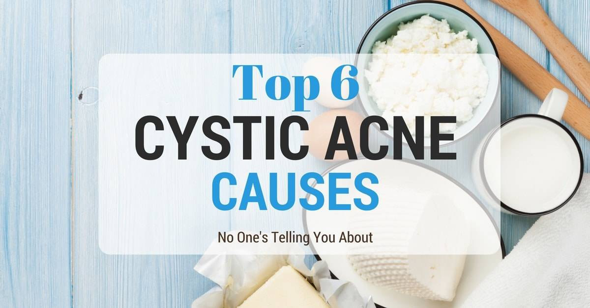 Watch Out! Top 6 Cystic Acne Causes No One's Telling You About