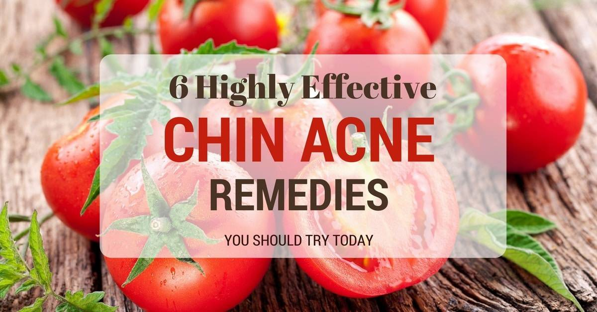 6 Highly Effective Chin Acne Remedies You Should Try Today