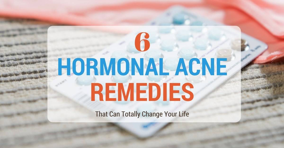 6 Hormonal Acne Remedies You Probably Didn't Know About