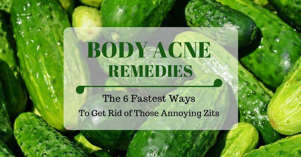 Body Acne Remedies: The 6 Fastest Ways To Get Rid of Those Annoying Zits
