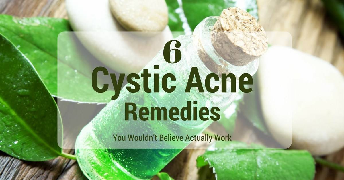 6 Cystic Acne Remedies You Wouldn't Believe Actually Work