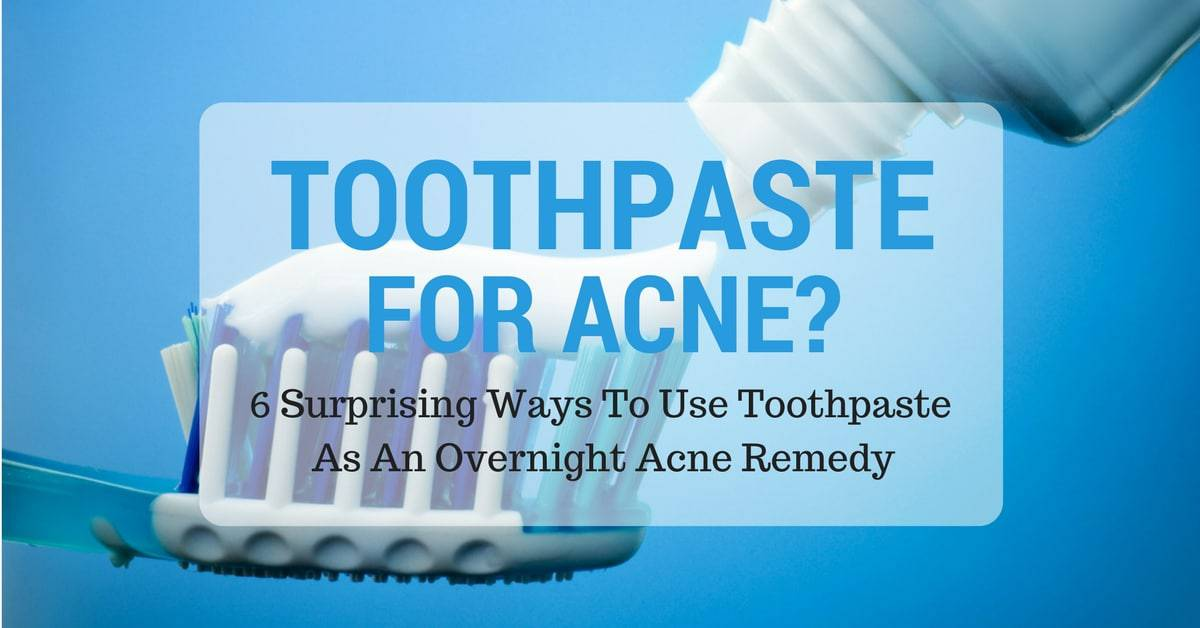 Toothpaste For Acne? 6 Surprising Ways To Use Toothpaste As An Overnight Acne Remedy