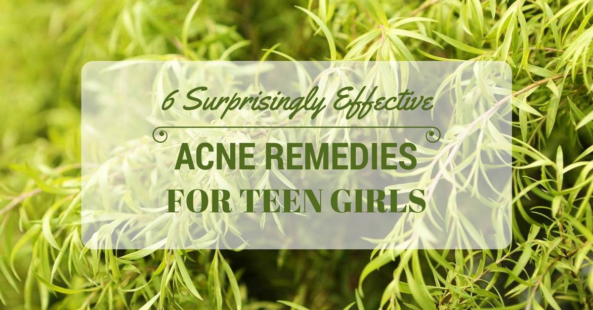 6 Surprisingly Effective Acne Remedies For Teen Girls