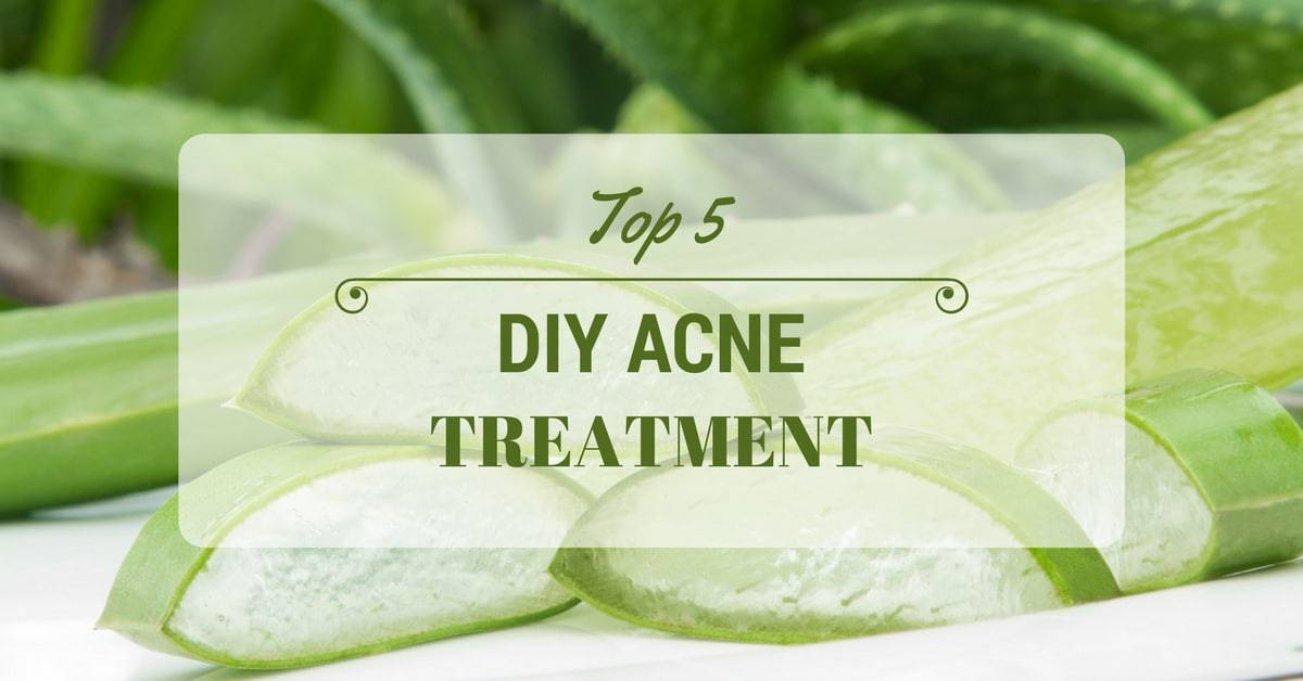 Top 5 DIY Acne Treatment That Can Give You Clear Skin Overnight