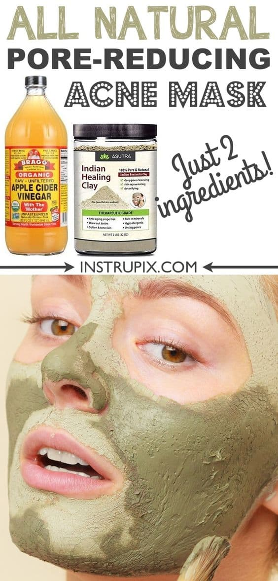 This DIY face mask for pores is another twist to your usual clay masks. It makes use of apple cider vinegar and Indian healing clay to restore healthy and radiant-looking skin.