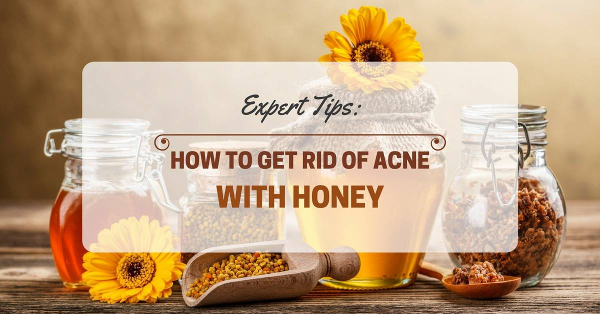 Expert Tips: How To Get Rid of Acne With Honey