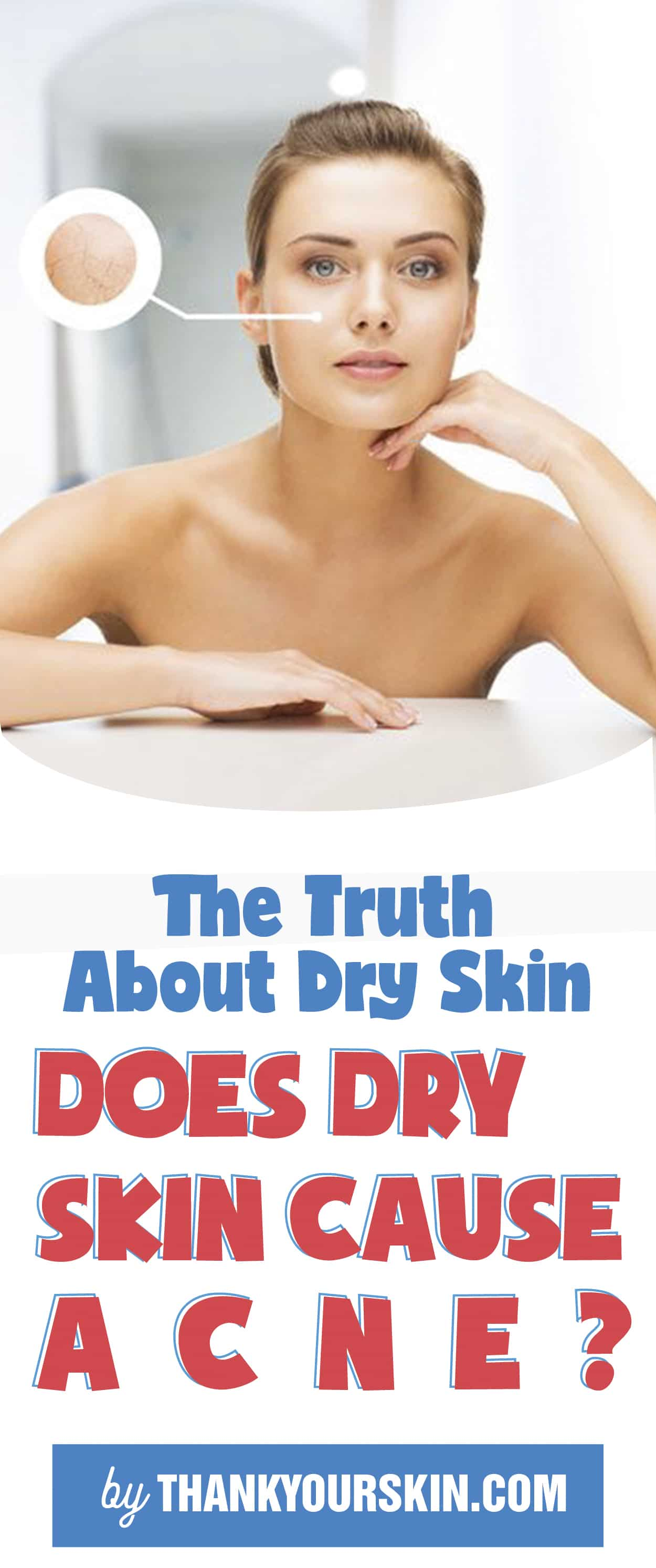 Does Dry Skin Cause Acne
