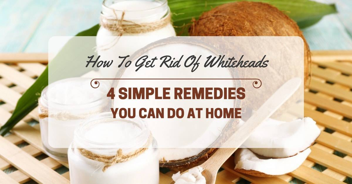 How to Get Rid of Whiteheads: 4 Simple Remedies You Can Do At Home