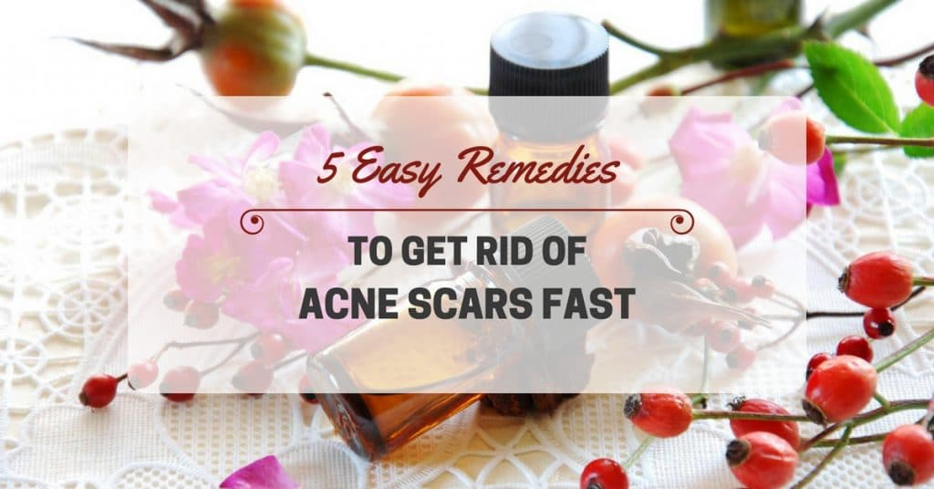 5 Easy Remedies To Get Rid Of Acne Scars Fast