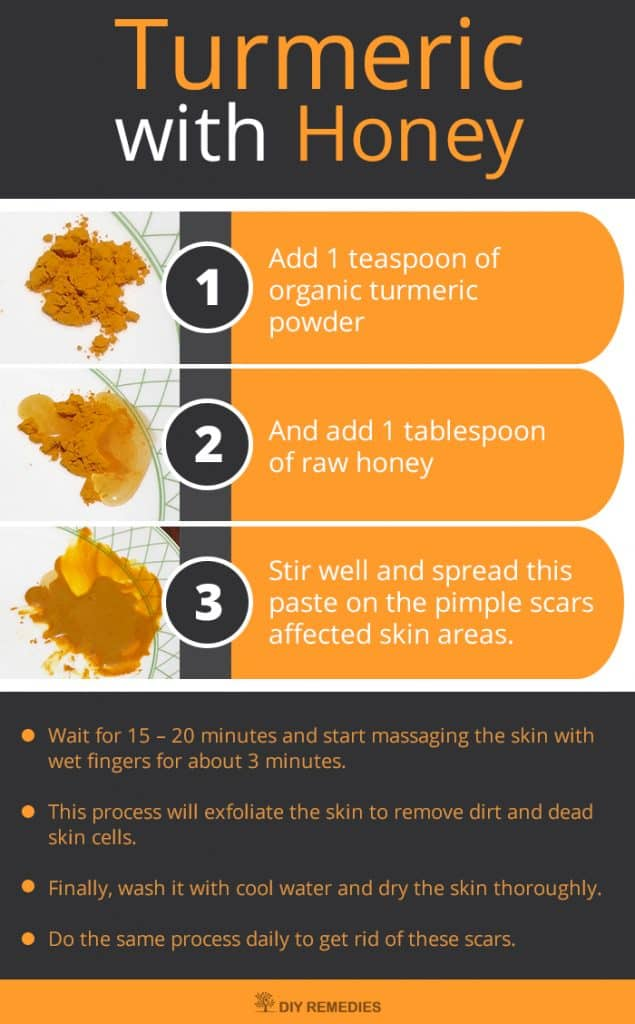 This DIY turmeric face mask is a great option for those dealing with acne scarring. With the help of honey and turmeric powder, you'll be greeted with healthy, even skin in no time.